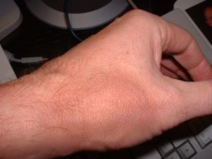 unauffällige Wanderröte an der linken Hand